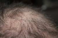 Osocze bogatopłytkowe w leczeniu łysienia